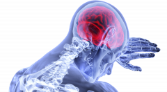 brain-3168269 1920